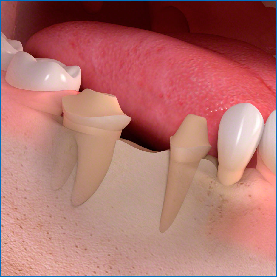 Что значит препарирование зуба